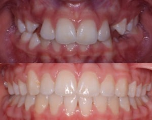 Before and After Orthodontic Pictures